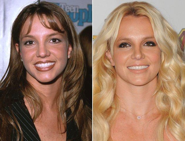 Veja os resultados da Rinoplastia na cantora Britney Spears