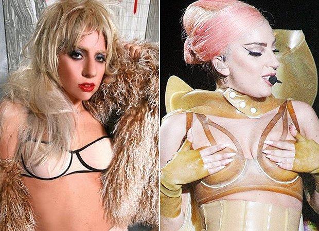 Cirurgia de Nariz Rinoplastia na Lady Gaga