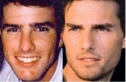 Tom Cruise Rinoplastia Cirurgia de Nariz