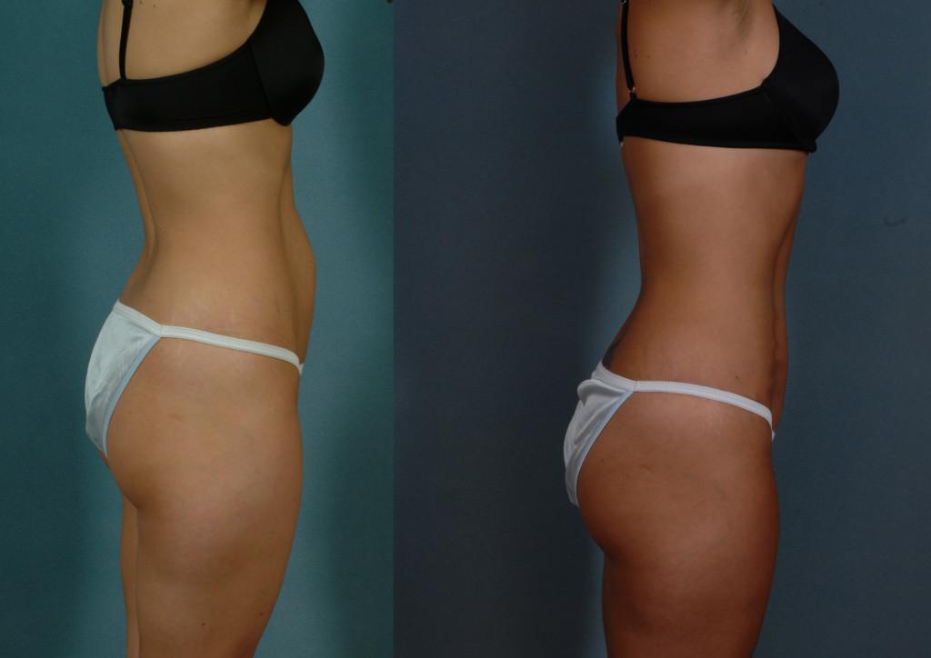 Abdominoplastia: antes e depois